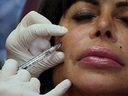Big Ang Plastic Surgery, Big Ang Plastic Surgery before after, Big Ang breast implants, Big Ang breast augmentation, lip injection, botox, liposuction3
