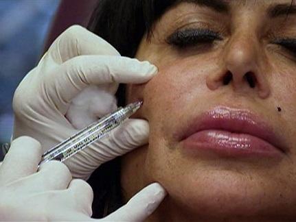 Big Ang Plastic Surgery, Big Ang Plastic Surgery before after, Big Ang breast implants, Big Ang breast augmentation, lip injection, botox, liposuction3