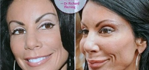 Danielle Staub plastic surgery, Danielle Staub plastic surgery before after photos, Danielle Staub photos, breast implants, breast augmentation, browlift, botox, fillers0
