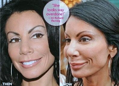 Danielle Staub plastic surgery, Danielle Staub plastic surgery before after photos, Danielle Staub photos, breast implants, breast augmentation, browlift, botox, fillers0
