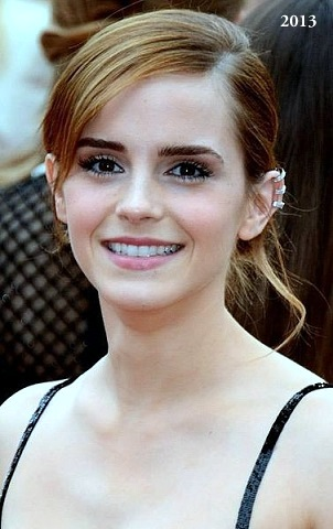 Emma Watson plastic surgery, Emma Watson plastic surgery before after photos, Emma Watson tumblr, nose job, dental fixture, botox, Emma Watson photos