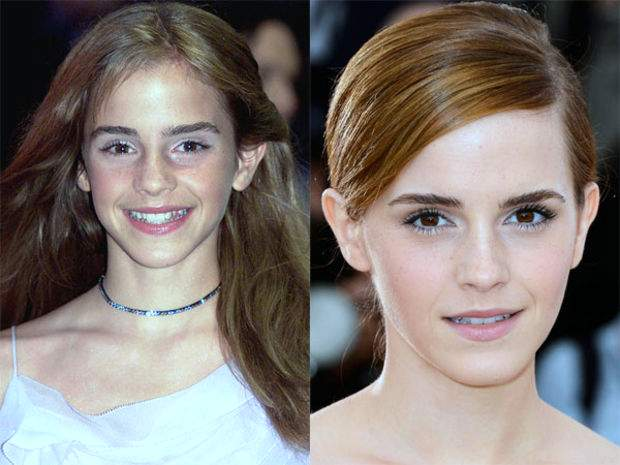 Emma Watson Plastic Surgery Before And After Photos