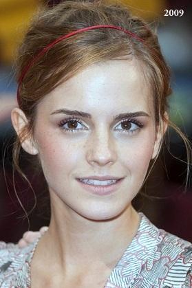Emma Watson plastic surgery, Emma Watson plastic surgery before after photos, Emma Watson tumblr, nose job, dental fixture, botox, Emma Watson photos5