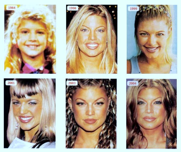 Fergie plastic surgery, Fergie plastic surgery before after photos, Fergie breast implants, Fergie breast augmentation, nose job, botox, Fergie photos, Fergie images, Fergie pictures1