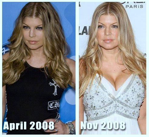 Fergie plastic surgery, Fergie plastic surgery before after photos, Fergie breast implants, Fergie breast augmentation, nose job, botox, Fergie photos, Fergie images, Fergie pictures2