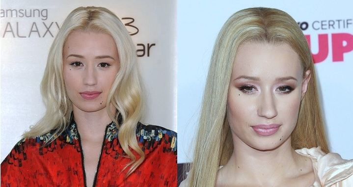 Iggy Azalea plastic surgery, Iggy Azalea plastic surgery before after photos, Iggy Azalea photos, breast implants, breast augmentation, butt implants, has Iggy Azalea had butt implants, lip injection3