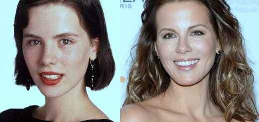 Kate Beckinsale plastic surgery, Kate Beckinsale breast implants, Kate Beckinsale before after photos, nose job, cosmetic surgery0