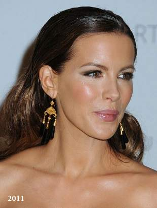 Kate Beckinsale plastic surgery, Kate Beckinsale breast implants, Kate Beckinsale before after photos, nose job, cosmetic surgery6