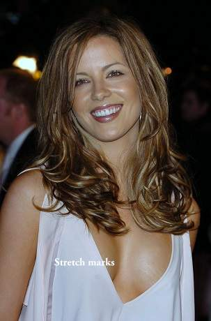 Kate Beckinsale plastic surgery, Kate Beckinsale breast implants, Kate Beckinsale before after photos, nose job, cosmetic surgery9