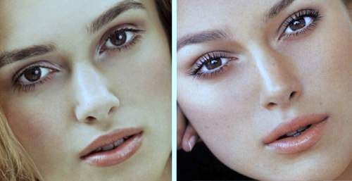 Keira Knightley plastic surgery, Keira Knightley plastic surgery before after photos, Keira Knightley nose job, plastic surgery rumors, botox0