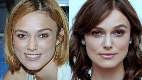 Keira Knightley plastic surgery, Keira Knightley plastic surgery before after photos, Keira Knightley nose job, plastic surgery rumors, botox1