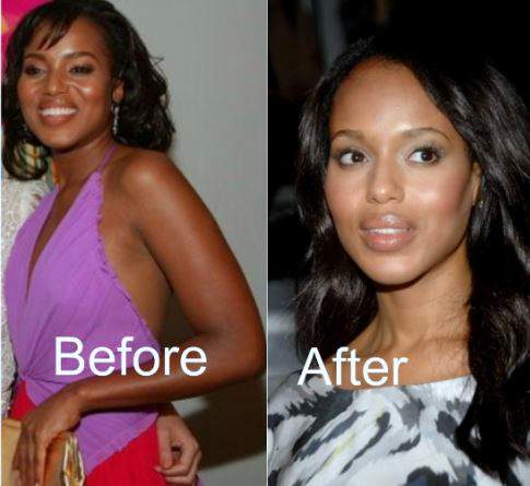 Kerry Washington plastic surgery, Kerry Washington before pictures, Kerry Washington plastic surgery before after photos, nose job, eyelid surgery, botox, Kerry Washington cosmetic surgery photos5