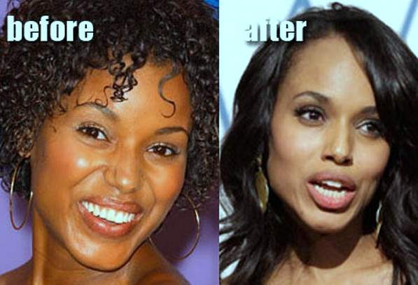 Kerry Washington plastic surgery, Kerry Washington before pictures, Kerry Washington plastic surgery before after photos, nose job, eyelid surgery, botox, Kerry Washington cosmetic surgery photos6