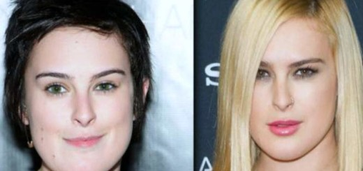 Rumer Willis plastic surgery, Rumer Willis plastic surgery before after, rumer willis chin, botox, lip injections, rumer willis photos0