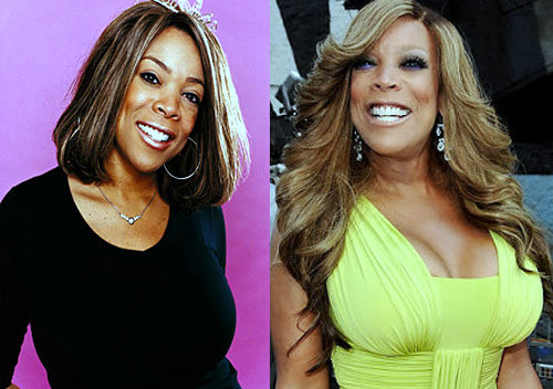 Wendy Williams plastic surgery, Wendy Williams plastic surgery before after photos, Wendy Williams breast augmentation, breast implants, Wendy Williams photos, liposuction, botox