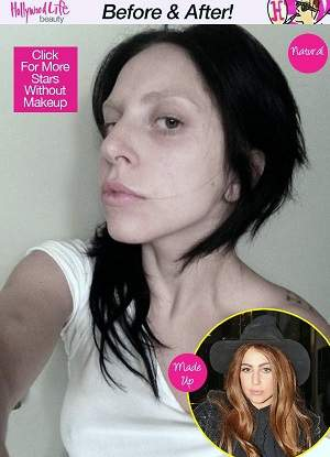 lady gaga plastic surgery, lady gaga photos, lady gag plastic surgery before after photos, lady gaga nose job, lip injection, botox, lady gaga without makeup0