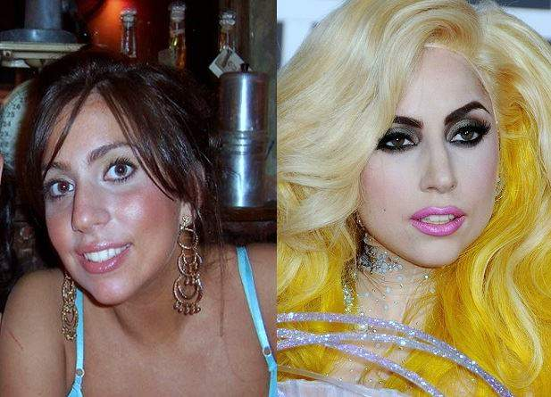 lady gaga plastic surgery, lady gaga photos, lady gag plastic surgery before after photos, lady gaga nose job, lip injection, botox, lady gaga without makeup1