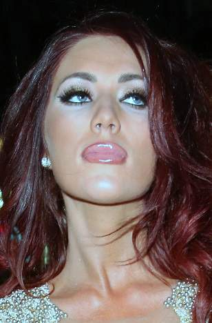 Amy Childs plastic surgery, Amy Childs photos, Amy Childs breast implants, Amy Childs botched breast implants, lip fillers, liposuction, Amy Childs before after photos1