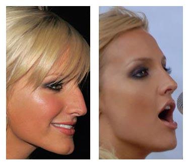 Ashlee Simpson plastic surgery, Ashlee Simpson nose job, Ashlee Simpson photos, rhinoplasty, Ashlee Simpson before after plastic surgery0