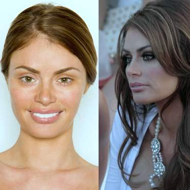 Chloe Sims plastic surgery, Chloe Sims photos, Chloe Sims breast implants, Chloe Sims butt lift, botox, fillers, Chloe Sims before after plastic surgery3