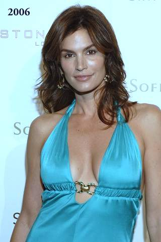Cindy Crawford plastic surgery, Cindy Crawford photos, botox, before after photos, celebrities plastic surgery, Cindy Crawford before photos, Cindy Crawford after photos0
