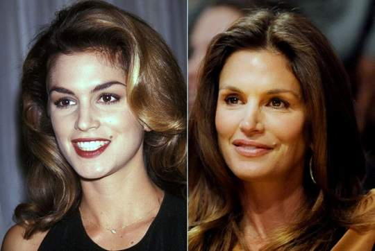 Cindy Crawford plastic surgery, Cindy Crawford photos, botox, before after photos, celebrities plastic surgery, Cindy Crawford before photos, Cindy Crawford after photos3