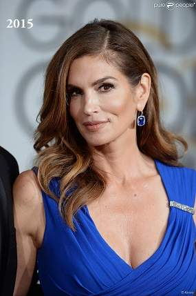 Cindy Crawford plastic surgery, Cindy Crawford photos, botox, before after photos, celebrities plastic surgery, Cindy Crawford before photos, Cindy Crawford after photos5