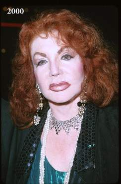 Jackie Stallone plastic surgery, Jackie Stallone before after, Jackie Stallone before and after, Jackie Stallone cosmetic surgery, Jackie Stallone pictures1