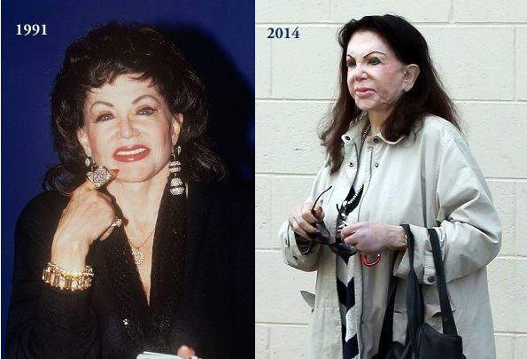 Jackie Stallone plastic surgery, Jackie Stallone before after, Jackie Stallone before and after, Jackie Stallone cosmetic surgery, Jackie Stallone pictures6