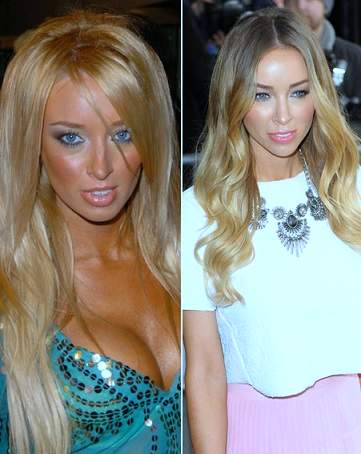 Lauren Pope plastic surgery, Lauren Pope plastic surgery before after photos, Lauren Pope breast implants, breast augmentation, nose job, botox, fillers, Lauren Pope photos