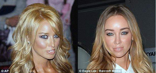 Lauren Pope plastic surgery, Lauren Pope plastic surgery before after photos, Lauren Pope breast implants, breast augmentation, nose job, botox, fillers, Lauren Pope photos0