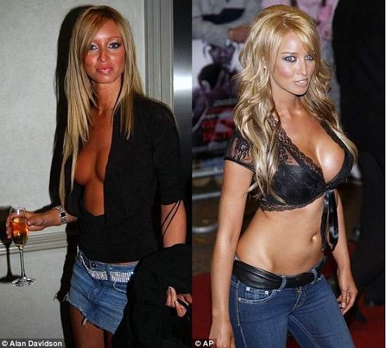 Lauren Pope plastic surgery, Lauren Pope plastic surgery before after photos, Lauren Pope breast implants, breast augmentation, nose job, botox, fillers, Lauren Pope photos1