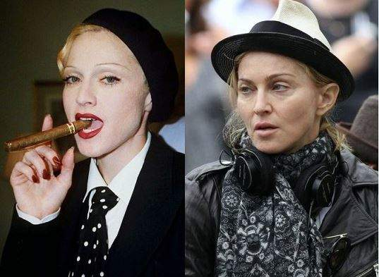 Madonna photos, Madonna plastic surgery, Madonna before after, Madonna cosmetic surgery, celebrities plastic surgery