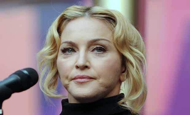 Madonna photos, Madonna plastic surgery, Madonna before after, Madonna cosmetic surgery, celebrities plastic surgery2