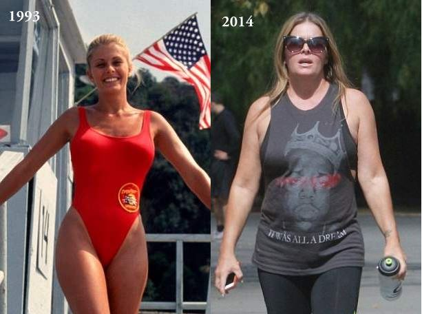 Nicole Eggert plastic surgery, Nicole Eggert breast implants, Nicole Eggert breast augmentation, Nicole Eggert photos, before after photos, plastic surgery before after photos3