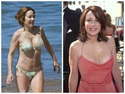Patricia Heaton plastic surgery, Patricia Heaton breast lift, tummy tuck, Patricia Heaton photos, before after photos, celebrities plastic surgery