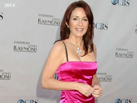 Patricia Heaton plastic surgery, Patricia Heaton breast lift, tummy tuck, Patricia Heaton photos, before after photos, celebrities plastic surgery0