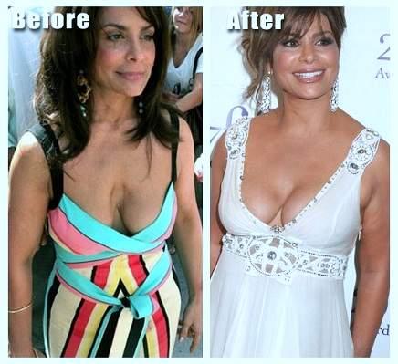 Paula Abdul plastic surgery, Paula Abdul photos, Paula Abdul before after photos, breast implants, nose job, botox, lip fillers, Paula Abdul cosmetic surgery2