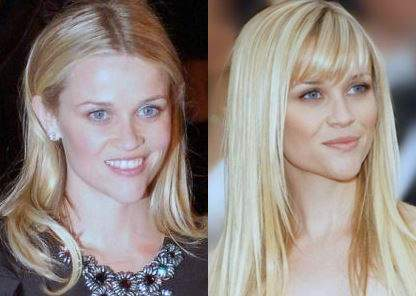 Reese Witherspoon plastic surgery, Reese Witherspoon photos, Reese Witherspoon chin reduction, botox, celebrities before after photos0