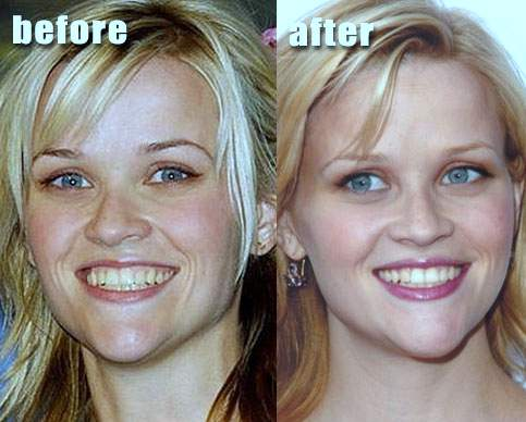 Reese Witherspoon plastic surgery, Reese Witherspoon photos, Reese Witherspoon chin reduction, botox, celebrities before after photos2