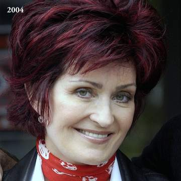 Sharon Osbourne plastic surgery, Sharon Osbourne photos, Sharon Osbourne cosmetic surgery, celebrities plastic surgery before and after photos, face lift, neck lift, chemical peels