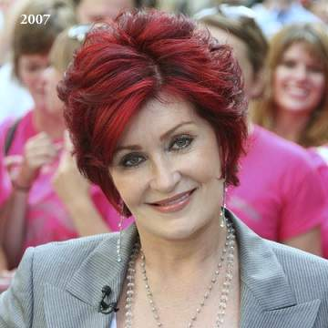 Sharon Osbourne plastic surgery, Sharon Osbourne photos, Sharon Osbourne cosmetic surgery, celebrities plastic surgery before and after photos, face lift, neck lift, chemical peels1