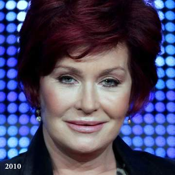 Sharon Osbourne plastic surgery, Sharon Osbourne photos, Sharon Osbourne cosmetic surgery, celebrities plastic surgery before and after photos, face lift, neck lift, chemical peels2