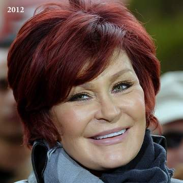 Sharon Osbourne plastic surgery, Sharon Osbourne photos, Sharon Osbourne cosmetic surgery, celebrities plastic surgery before and after photos, face lift, neck lift, chemical peels4