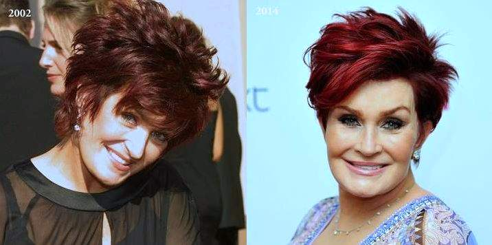 Sharon Osbourne plastic surgery, Sharon Osbourne photos, Sharon Osbourne cosmetic surgery, celebrities plastic surgery before and after photos, face lift, neck lift, chemical peels5