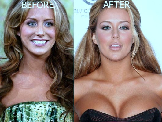 aubrey o'day before she was famous, aubrey o'day before and after, aubrey o'day pre surgery, aubrey o'day weight, breast augmentation, breast implants, butt implants, nose job, aubrey o'day photos1