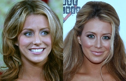 aubrey o'day before she was famous, aubrey o'day before and after, aubrey o'day pre surgery, aubrey o'day weight, breast augmentation, breast implants, butt implants, nose job, aubrey o'day photos2