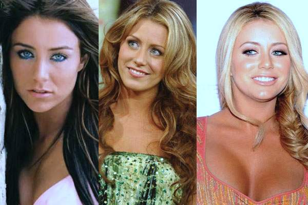 aubrey o'day before she was famous, aubrey o'day before and after, aubrey o'day pre surgery, aubrey o'day weight, breast augmentation, breast implants, butt implants, nose job, aubrey o'day photos3