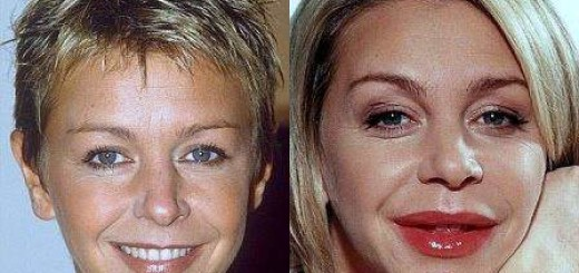 leslie ash plastic surgery, leslie ash photos, leslie ash lip job, leslie ash trout pout, leslie ash lip surgery, lip augmentation, lip injection