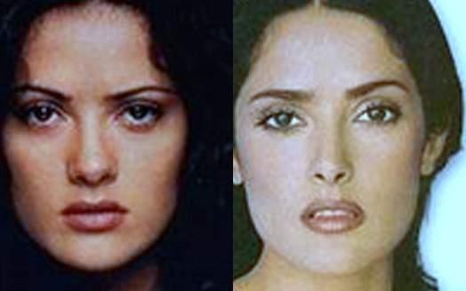 salma hayek plastic surgery, salma hayek before after photos, breast implants, breast augmentation, salma hayek photos, cosmetic surgery, nose job, rhinoplasty